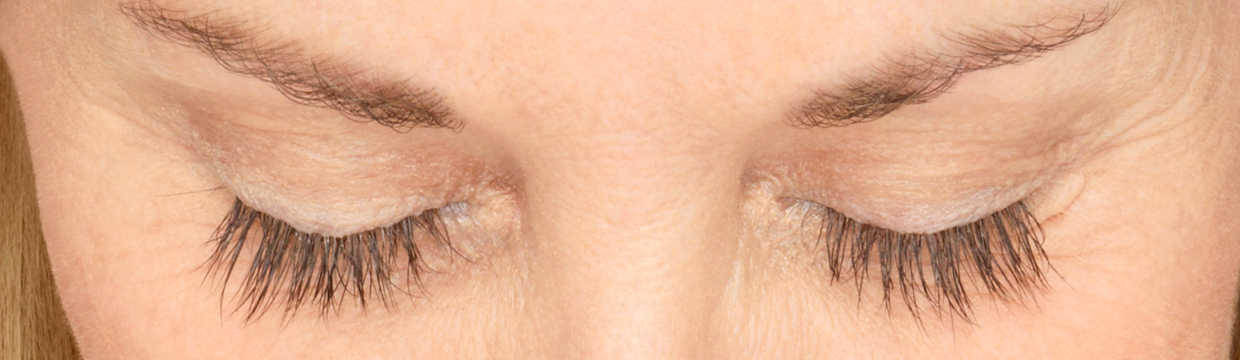 Latisse eyelash treatment