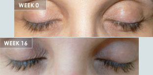 Longer Cut eyelashes grow